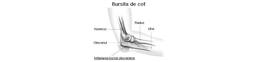 Bursita de cot (olecraniana)