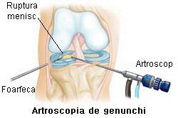 Artroscopia genunchi
