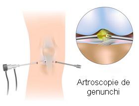 Artroscopia de genunchi-procedura