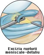 Detaliu meniscectomie