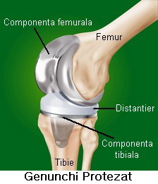 Proteza de genunchi