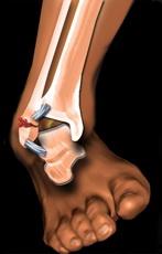 Mecanism fractura glezna