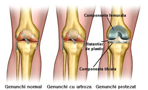Procedura protezare genunchi