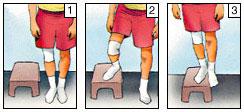 Recuperare-artroscopie-genunchi-12