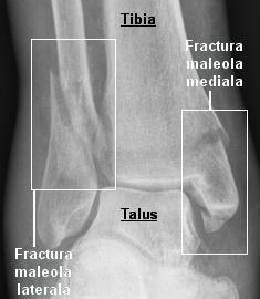 Rx fractura bimaleolara