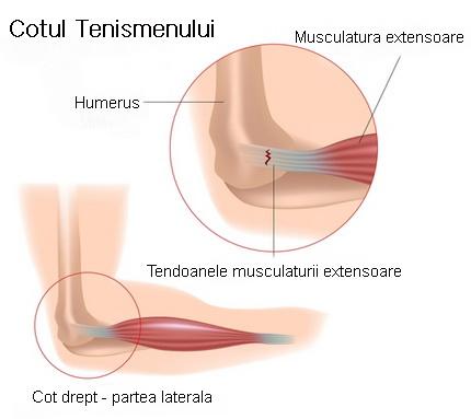Epicondilita laterala, anatomie.