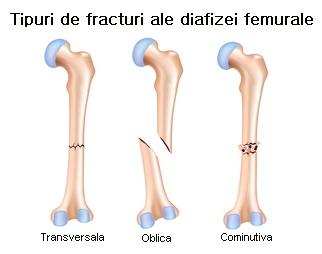 Tipuri fracturi femur