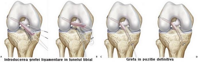 Ligamentoplastia genunchi