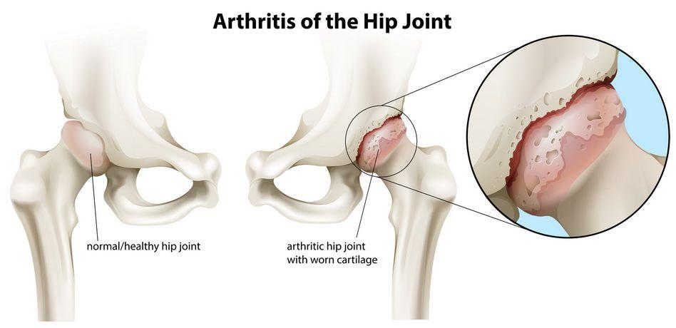 Artroza soldului