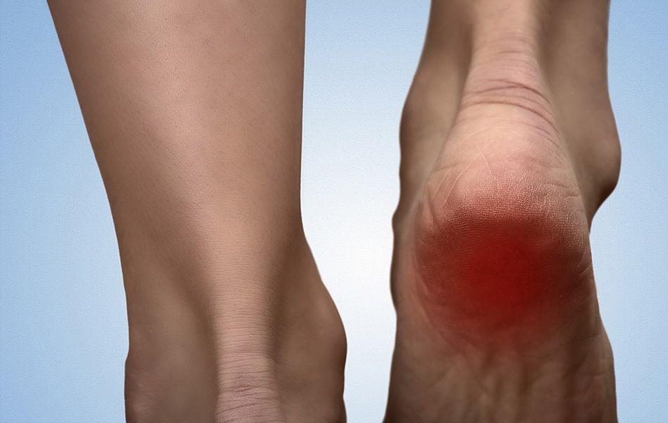 dureri de gleznă după umflături