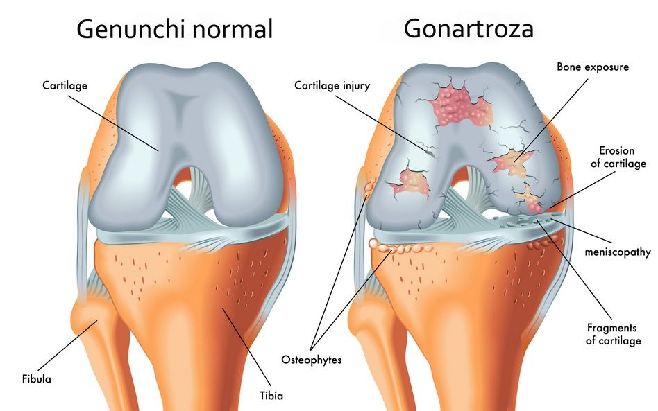Modificari cartilaj articular in gonartroza