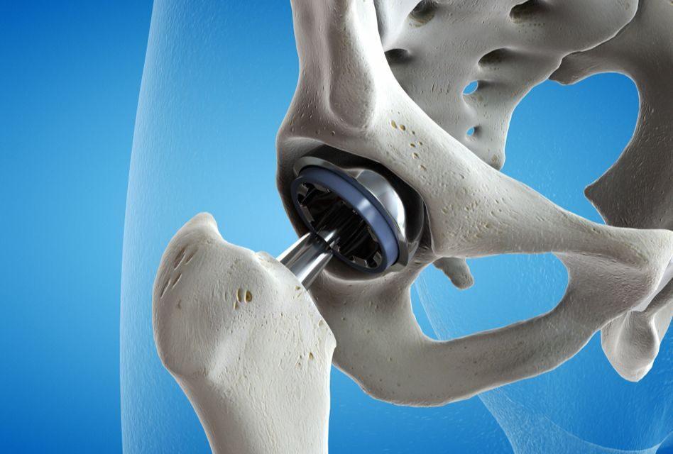 Proteza de Şold (Artroplastia Totală de Şold)